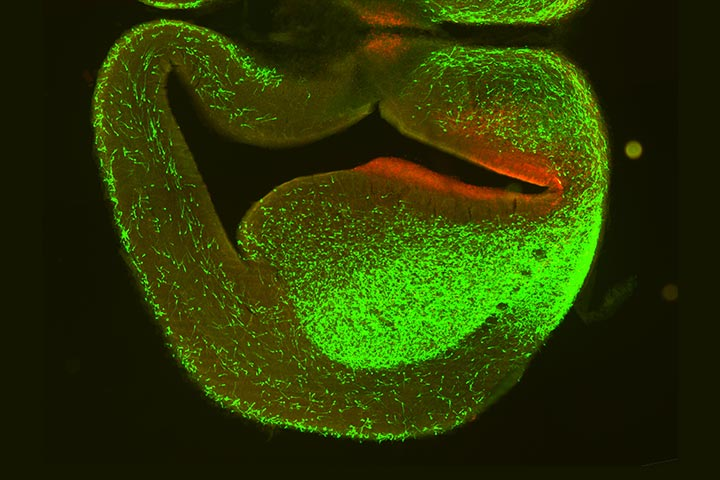 Photograph of brain neurological wiring